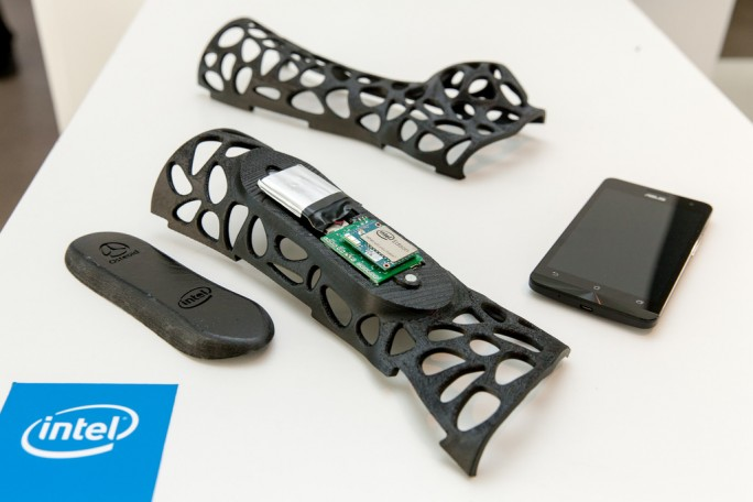 smart splint (Bild: Intel)
